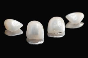 Are Veneers Stronger than Real Teeth_