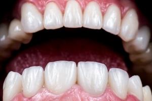 Do Veneers Ruin Your Teeth_