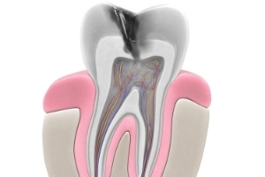 Does a Root Canal Hurt_