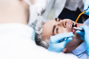 How Long Does a Root Canal Take_