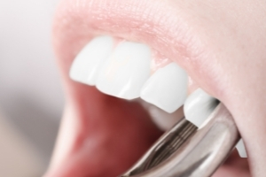 Is It Better to Have a Root Canal or Extraction_