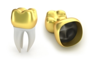 _What Types of Crowns are Available______ _ _____ _What Types of Crowns are A